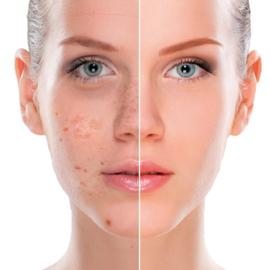Reduceer hyperpigmentatie, ouderdomsvlekjes en pigment en verhelder je huid