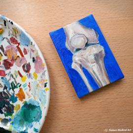 Medisch olieverf schilderij anatomie van de knie