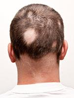Trix Basic Gamma - bij alopecia areata - 30 caps