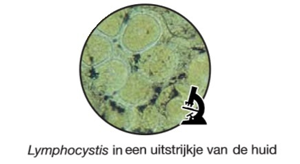 Lymphocystis microscoop.jpg