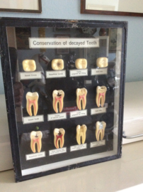Conservation of decayed teeth