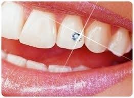 "Ik geef een tand ""diamant"" - tandkristal cadeau!"