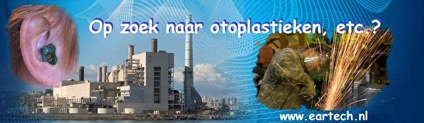 Industriele-gehoorbescherming-maat-otoplastieken