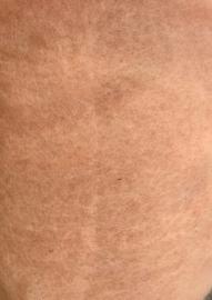 Bergschaap in vlies, huid