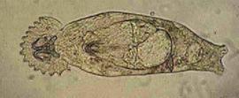 Huidworm / Kieuwworm