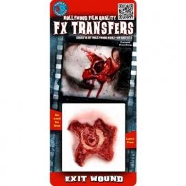 FX Wond Exit Wound