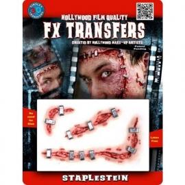 FX Wond Staplestein