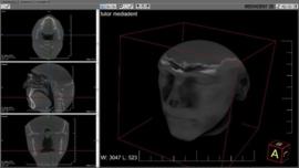 Mediadent v8 3D Viewer Module