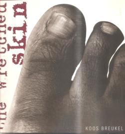 Breukel, Koos: The wretched skin