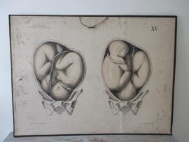 Oude anatomische schoolplaat zwangerschap tweeling SOLD
