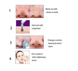 Blackhead remover acne puistjes mee eter verwijderen *2 kleuren*