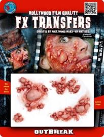 3D transfer tyfus uitbraak