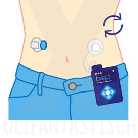 Medisch | Diabetes (vervangen sensor insulinepomp)