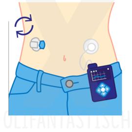 Medisch | Diabetes (vervangen naaldje insulinepomp)
