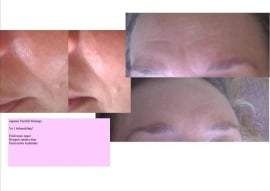 Oosterse Face Reflex - gezichtsmassage behandeling