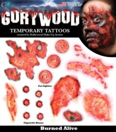 Wond tattoo burned alive