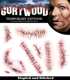 Wond tattoo stapled and stitched