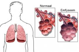 Wat is longemfyseem?