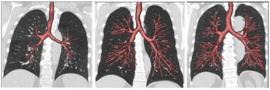 Ik heb nooit gerookt en nu heb ik toch ernstig COPD, hoe kan dat?