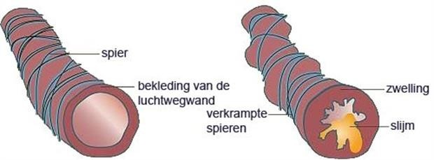 geiriteerde luchtwegen ww.COPDoplossingen.nl