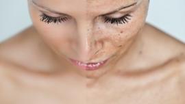 SPA- oxygen 60min (hyperpigmentatie,      brightening,     doffe/vale huid) € 70,00