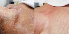 Combinatie Microneedling - BioPulse Therapie 120 min € 155,00