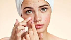 SPA-clear 60 min (onzuivere huid,acne,ontstekingen) € 60,00