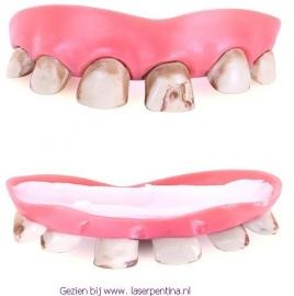 Gebit met grauwe Tanden