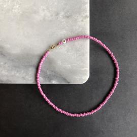 Pastel Pink Choker | Pastel Roze ketting