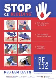Actieve Bloeding / Slagaderlijke Bloeding