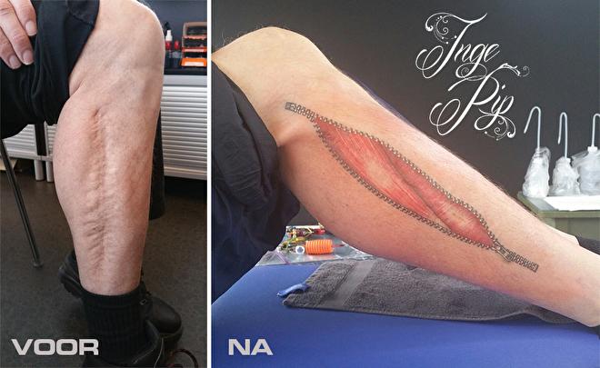 Inge Pip Tattoos Litteken Camouflage Tepel Reconstructie