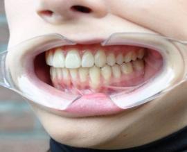 Set enkelvoudige lippenspreiders