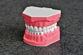 Dental model for OMFT instruction