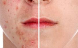 Wat te doen tegen acne?