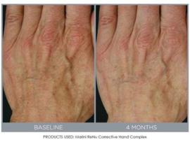 Jan Marini ReNu Corrective Hand Complex - 28gr
