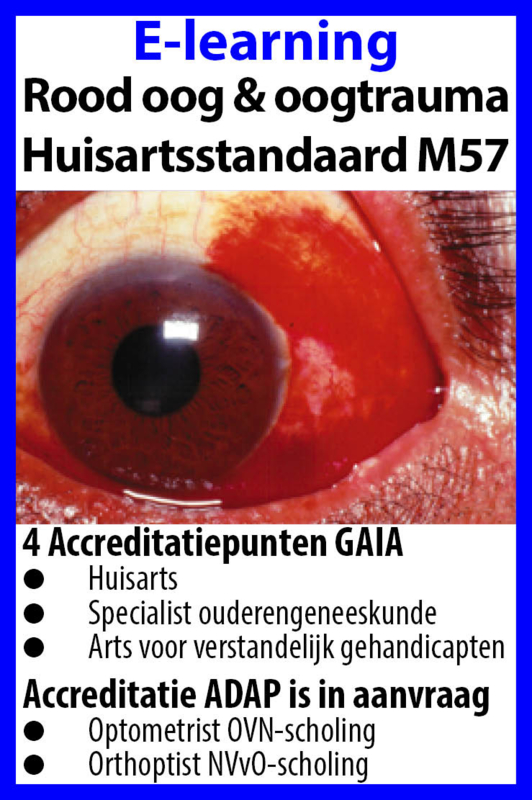 E-learning rood oog en oogtrauma 2020 M57