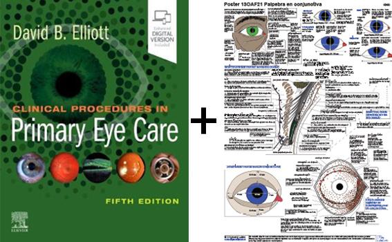 01 ELLIOT + GRATIS poster voorste oogsegment