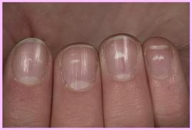 Witte stipjes op het nagelbed