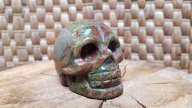 Unakiet human skull