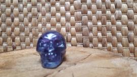 Fluoriet human skull