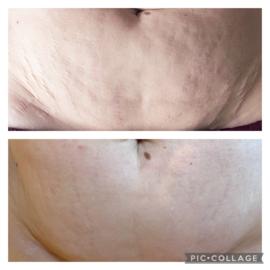 FAT KILLER KUUR ( 6 behandelingen )Slim Wrapping Buik