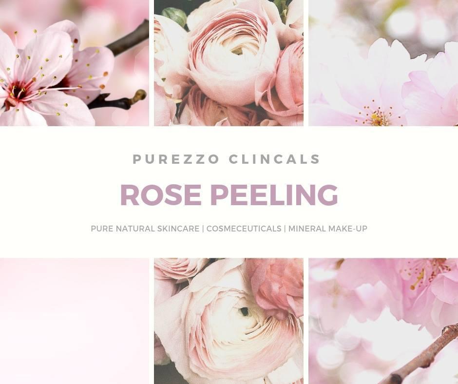 ROSE PEELING