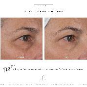 Alpah-H Liquid Gold firming eye cream
