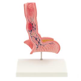 HEINE SCIENTIFIC Anatomisch model slokdarm met ziektebeelden