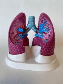 Anatomisch model Longen met 3 ziektebeelden (COPD, astma en kanker)