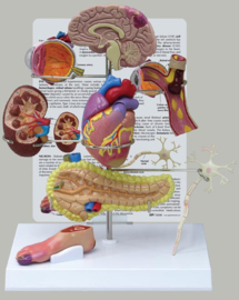 Anatomisch model Diabetes type 2