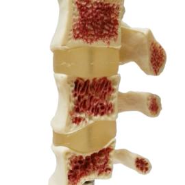 HEINE SCIENTIFIC Anatomisch model wervels met osteoporose