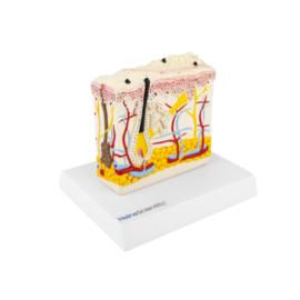 HEINE SCIENTIFIC Anatomisch model huid met psoriasis