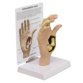 Anatomisch model Hand met artrose