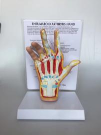 Anatomisch model Hand met reumatische artritis